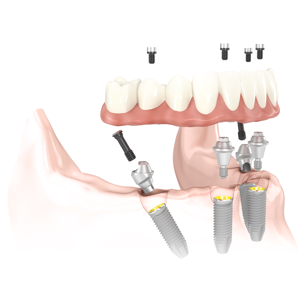 Al-on-4 dental implants