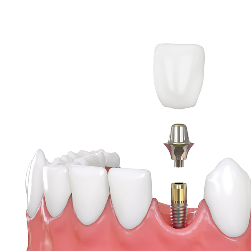 dental implants cheltenham