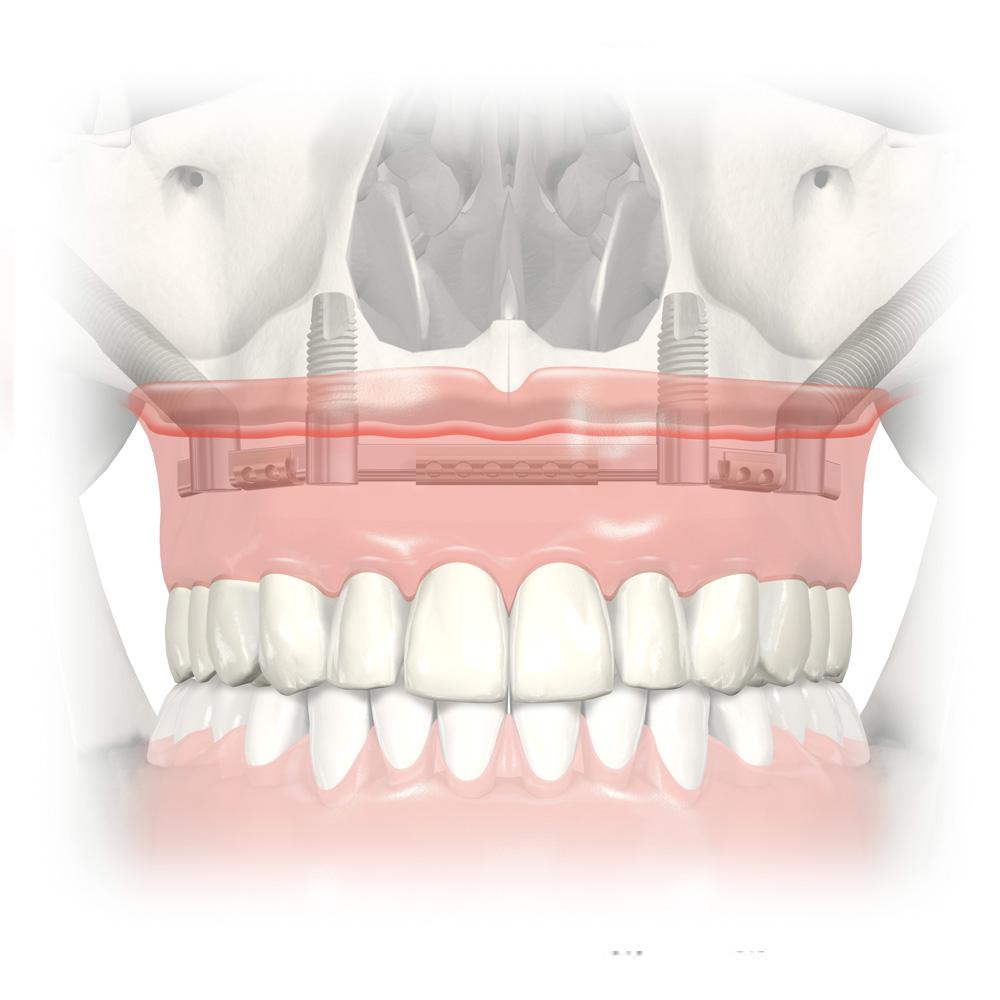 dental implants cheltenham