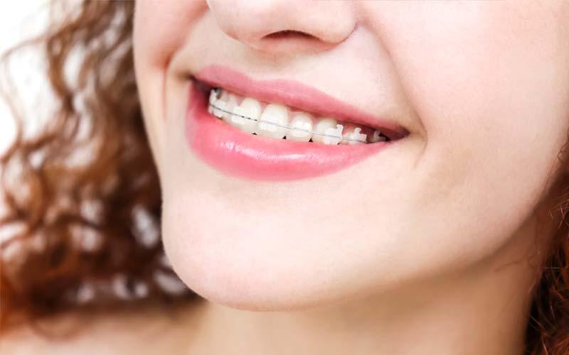 Girl wearing ceramic dental braces